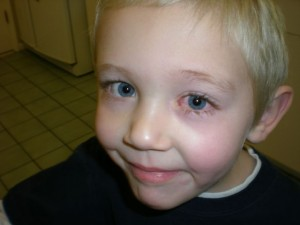 Natural Ways to Treat Pink Eye