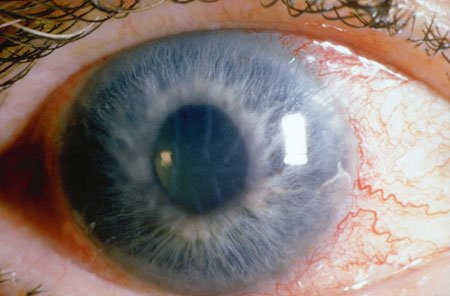 Glaucoma A Serious Eye Health Concern