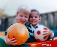 Everything You Need to Know about Myopia (Nearsightedness)