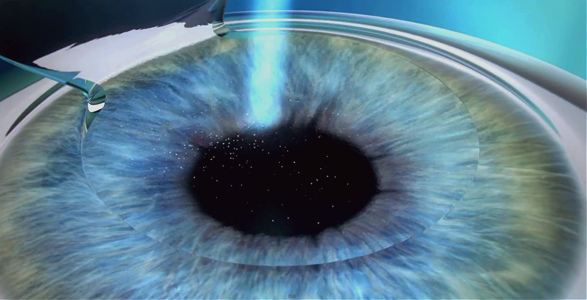 Is Lasik the Superior Option for You