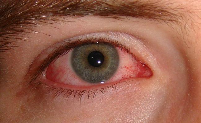 red_eye.e