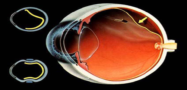 Understanding-and-Preventing-Retinal-Detachment